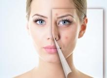 spa-queretaro-anti-acne10